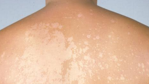 Tinea Versicolor white spots on the back
