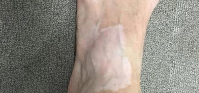 Developed vitiligo spot on the feed