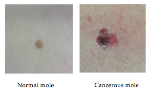 first symptoms of melanoma: the three symptom types to watch out, Human Body