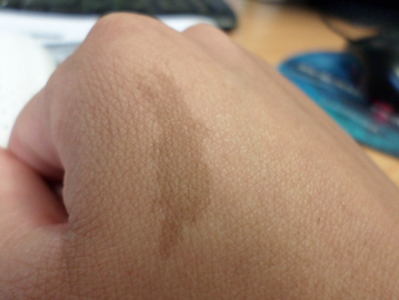Birthmarks on the hand