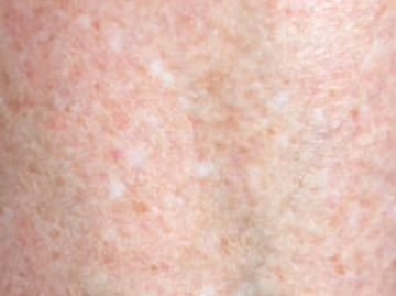 Common types of skin pigment discoloration: Idiopathic guttate hypomelanosis