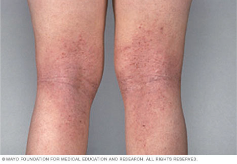 Eczema causes white spots on the skin
