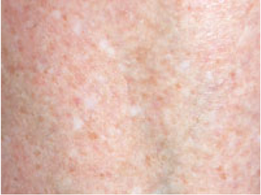 What are white spots on the skin? | SkinVision Blogs