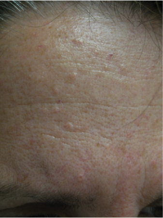 Skin lesions on the face: most common types | SkinVision Blog