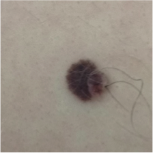 Hairs growing out of a mole