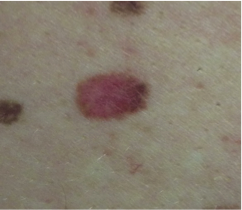 Red or pink spot on a mole