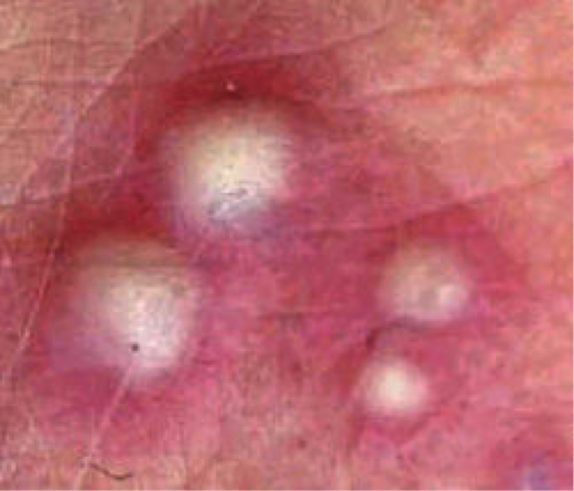 Transient Neonatal Pustular Melanosis Picture Image on ...